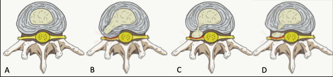 Figure 1. A) Normal disc anatomy B) Disc Protrusion C) Disc Extrusion D) Disc Sequestration