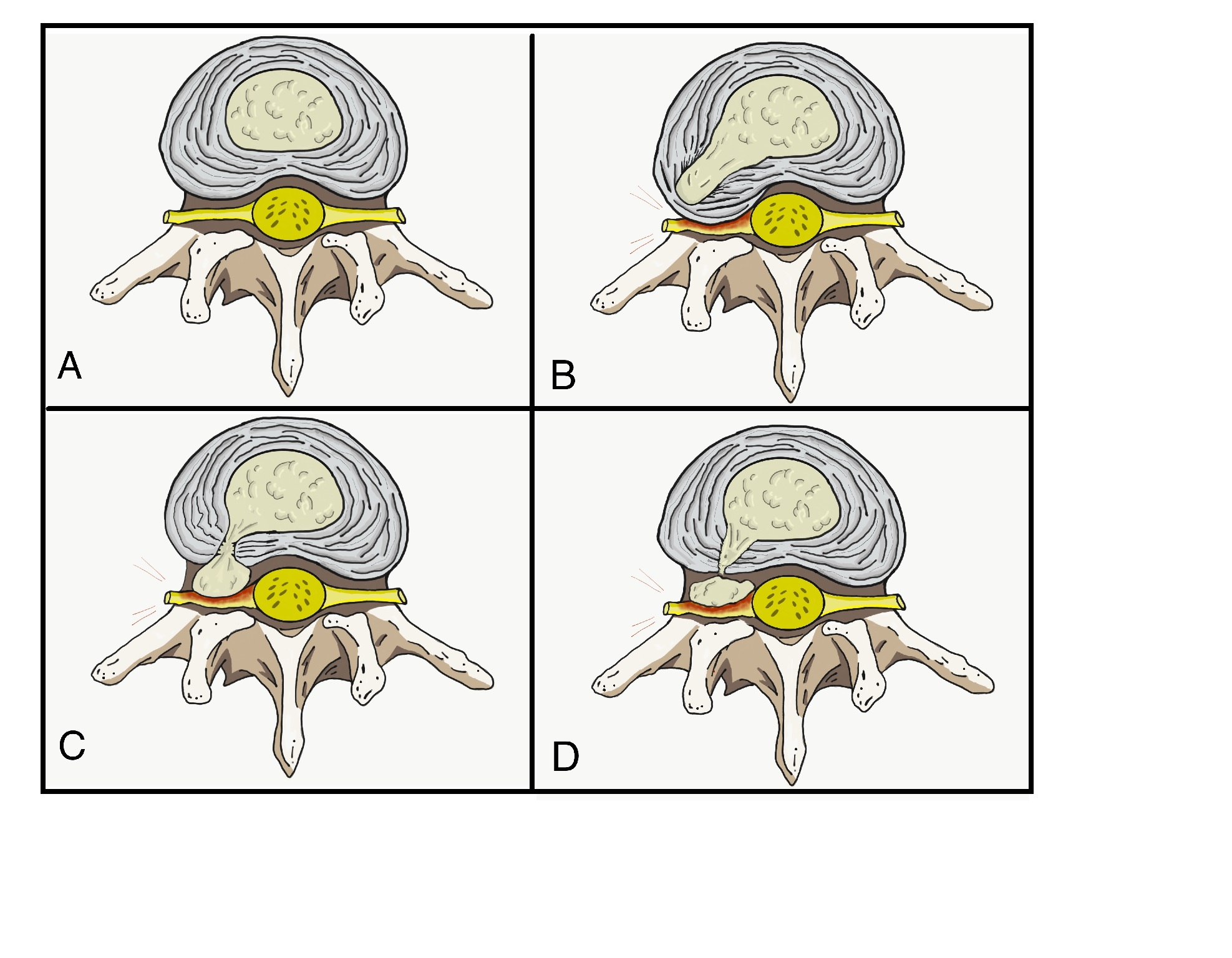Figure 1 of Nucleus pulposus herniation