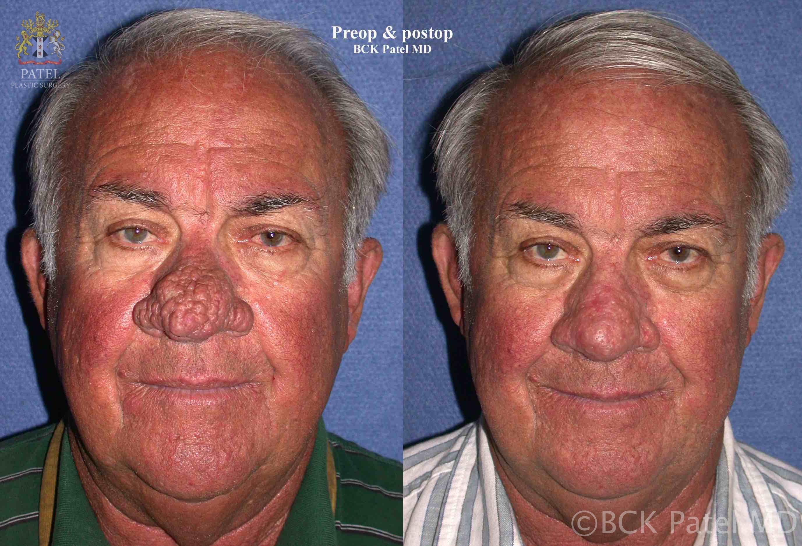58-year-old gentleman undersent scalpel resection of the rhinophyma and immediate CO2 laser resurfacing and shrinkage of the surrounding tissues with healing by secondary intention. Photos show the appearance 4 months after resection of the rhinophyma.