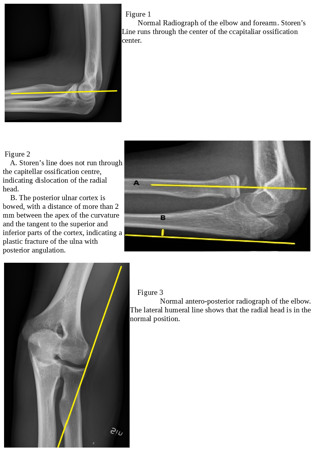 Radial Head Dislocation