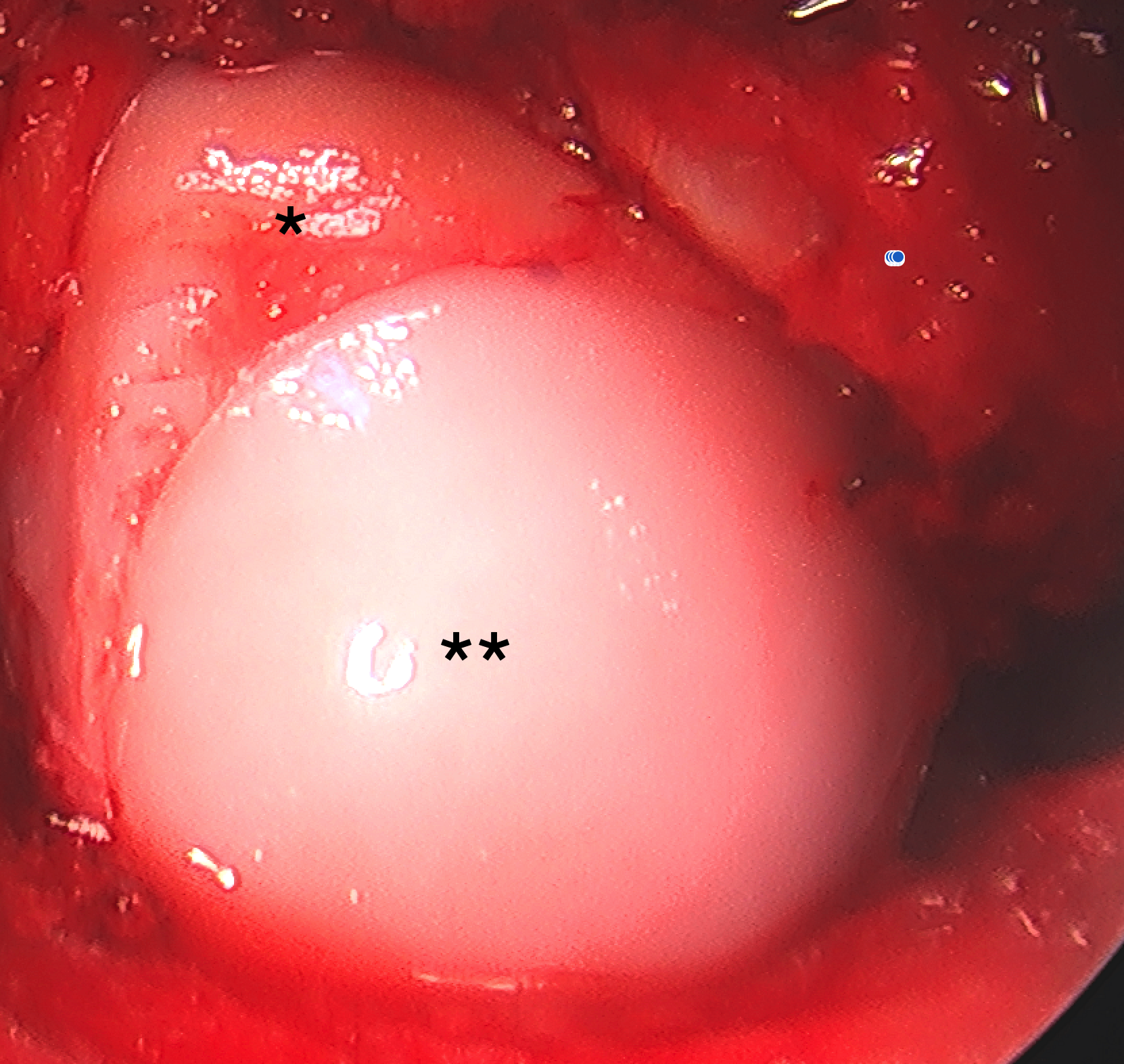 Intraoperative imaging capturing osteochondral allograft implantation (**) after measuring technical diameter and depth following guide facilitated intraoperative measurements.  The native lateral femoral condyle (LFC) cartilage is denoted (*).