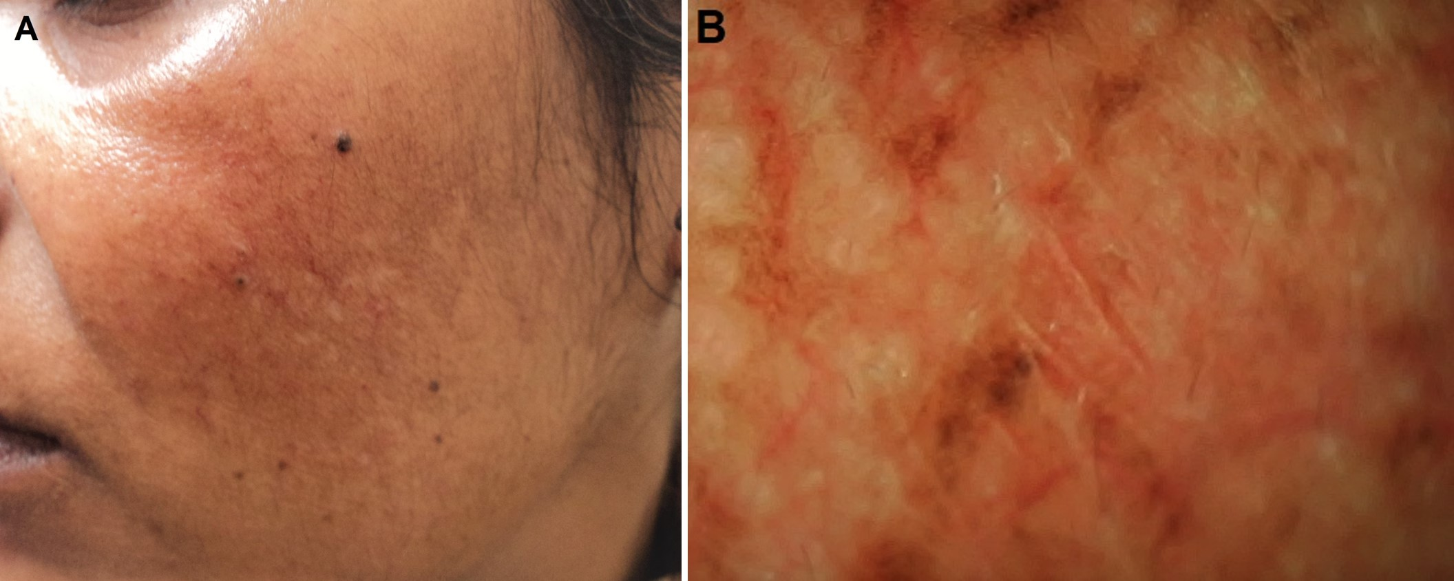 Figure 1: Treatment refractory melasma with history of mild photosensitivity in a 35-year old woman: A, Clinical image; and B, Dermoscopic image [E-Scope, Timpac Health Care Pvt. Ltd., polarized mode, 30X magnification]