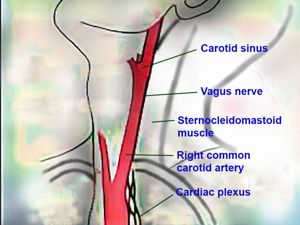Neck: Carotid sinus, Vagus nerve, Sternocleidomastoid muscle, Right common carotid artery, and Cardiac plexus