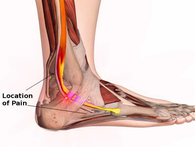 Peroneal tendon syndromes