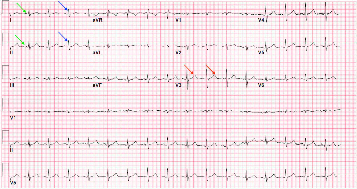 Figure 1: Normal EKG showing P waves (green arrows), QRS complex (blue arrows), and T waves (red arrows)