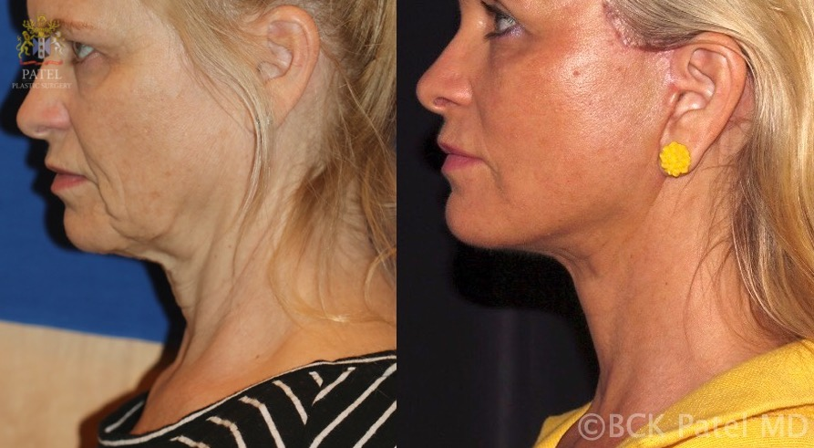 Result of a deep-plane facelift. Note the re-volumization of the midface with improvement in the projection of the malar eminence, improvement of the jowl with appropriate platysmal and SMAS repositioning and buccal fat pad reduction.