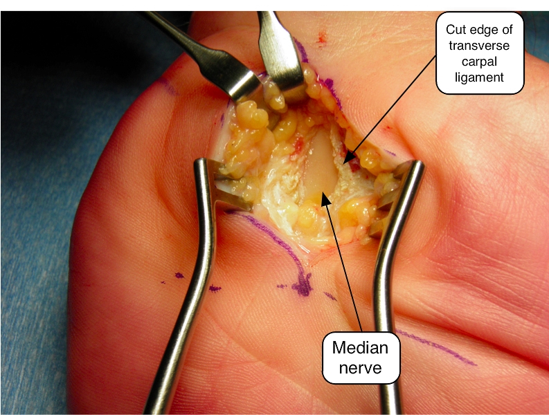 The image shows the transverse carpal ligament cut transversely to remove tension from the underlying nerve.