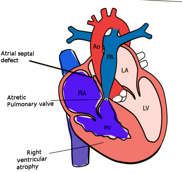 Pulmonary atresia with intact VS