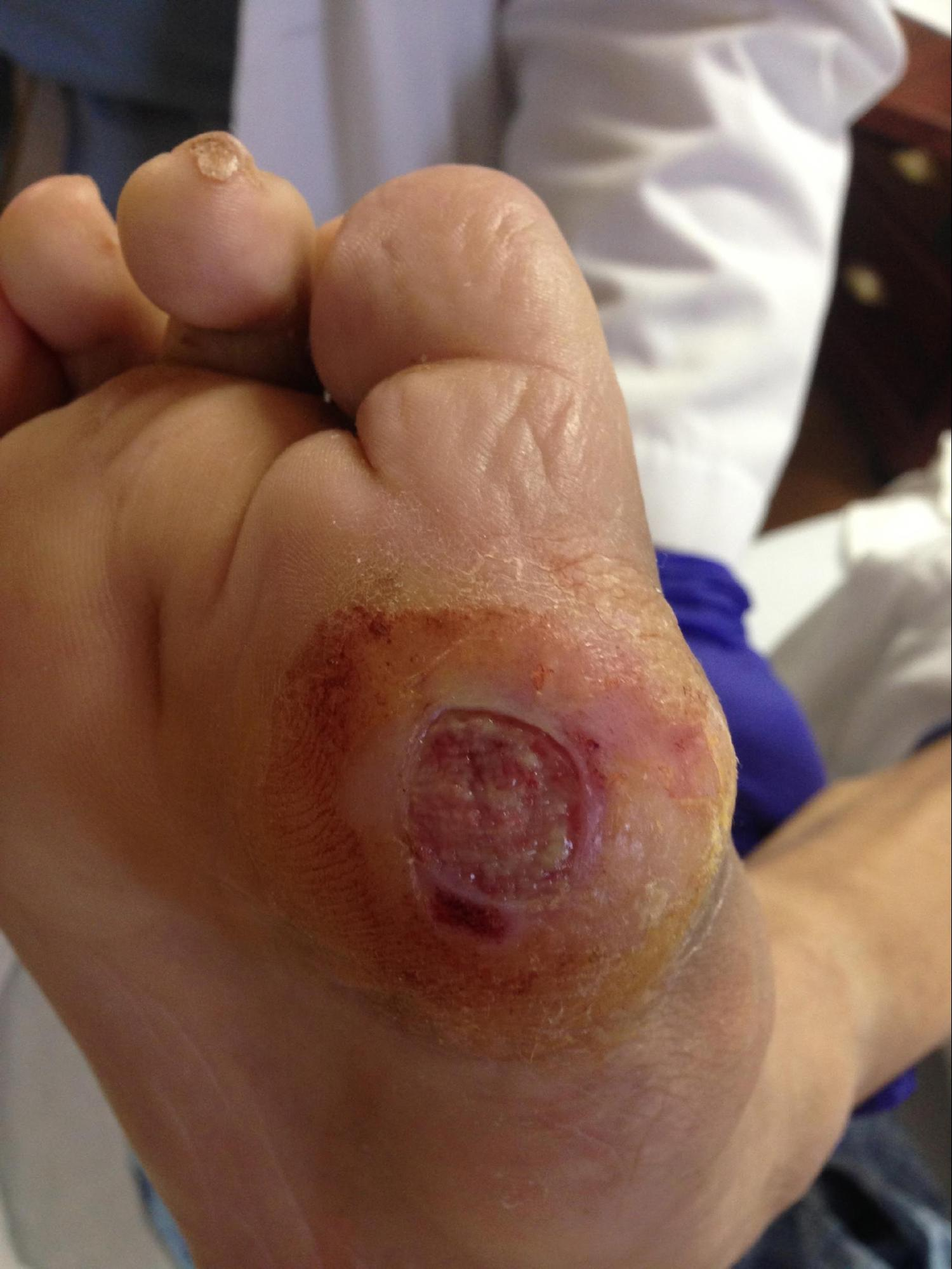 Diabetic Ulcer