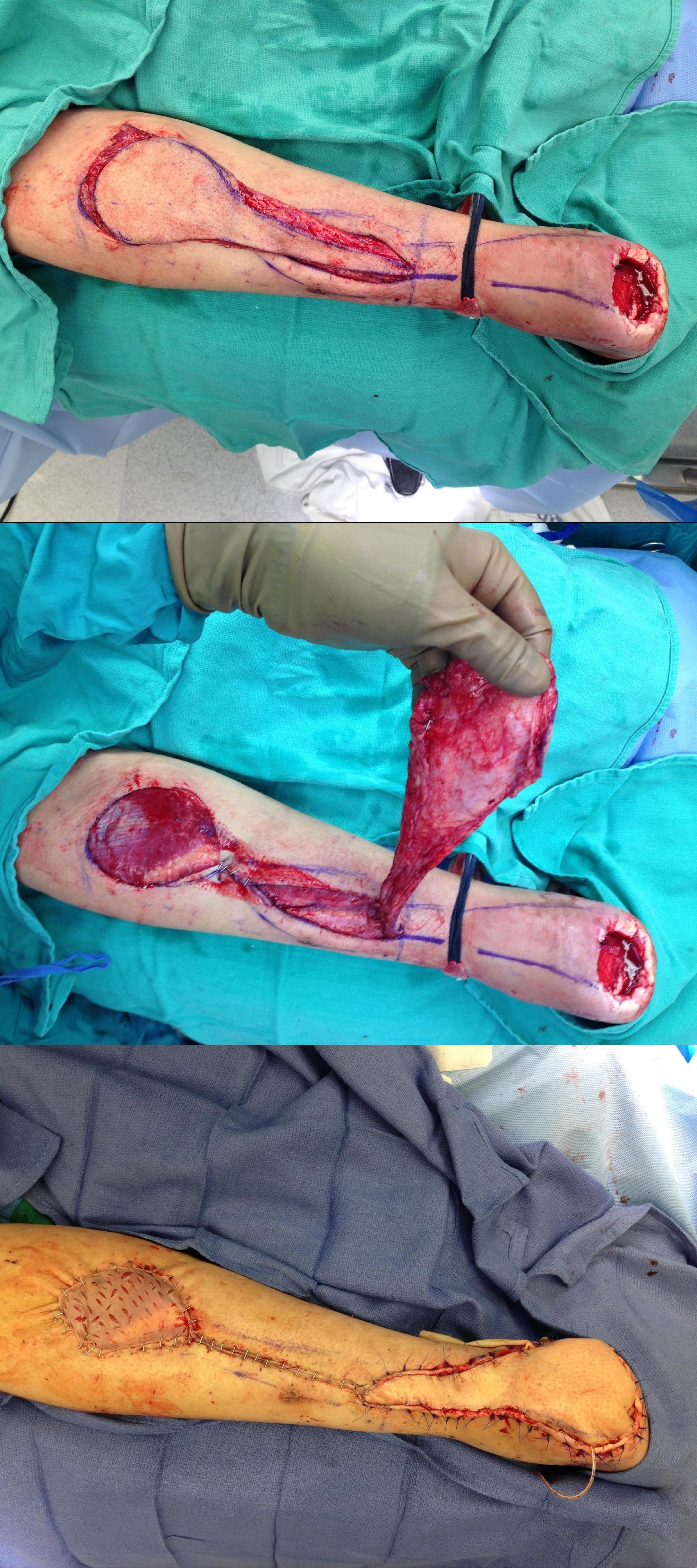 Rotation Flap