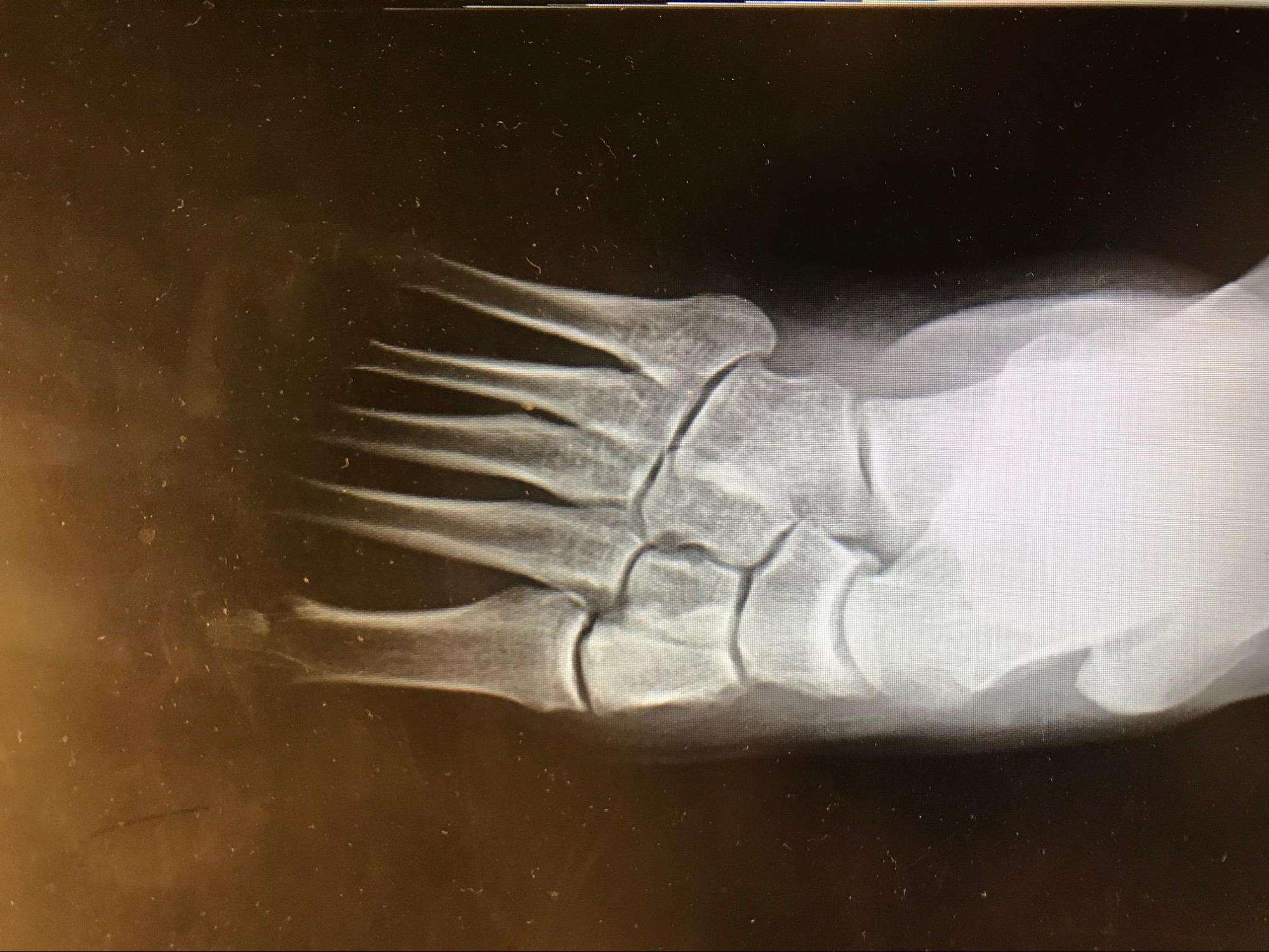 Adult Acquired Flatfoot