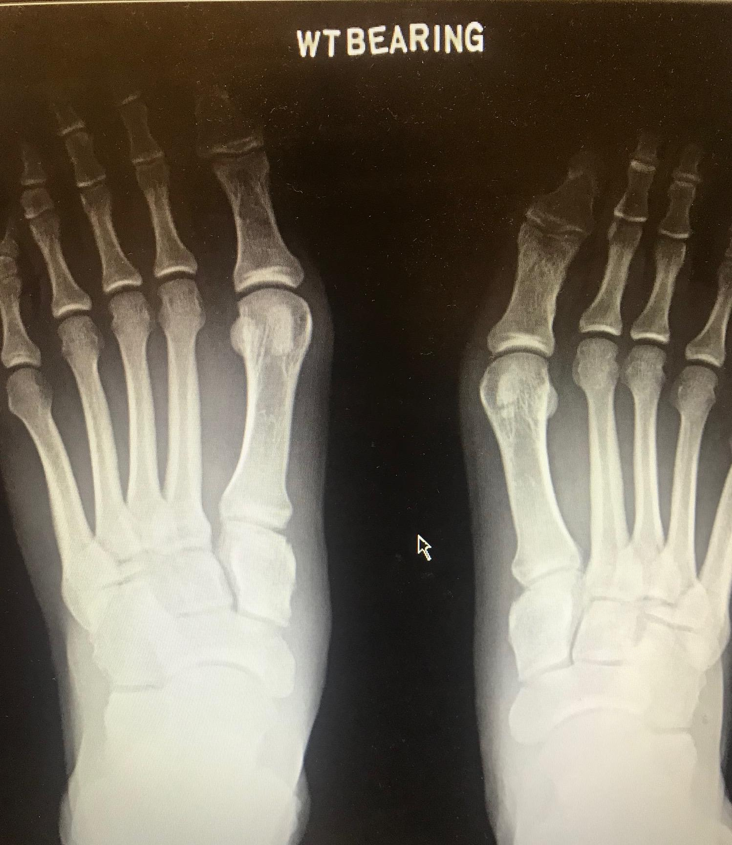 Lisfranc Dislocation