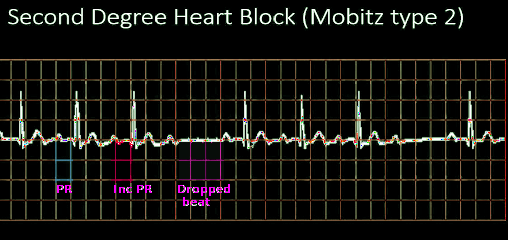 Mobitz 2 heart block