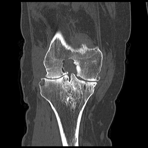 Coronal CT image in a patient with knee swelling demonstrating erosions and a joint effusion due to pgimented villonodular synovitis (PVNS).