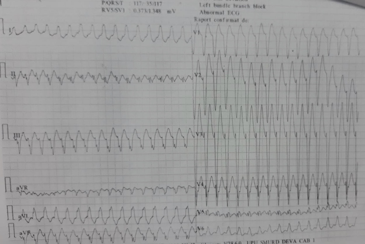 Ischemic ventricular tachycardia in a patient with an old inferior myocardial infarction