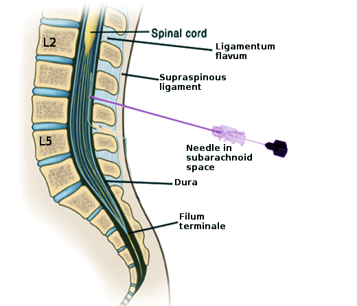 Anatomy of the distal lumbar spine