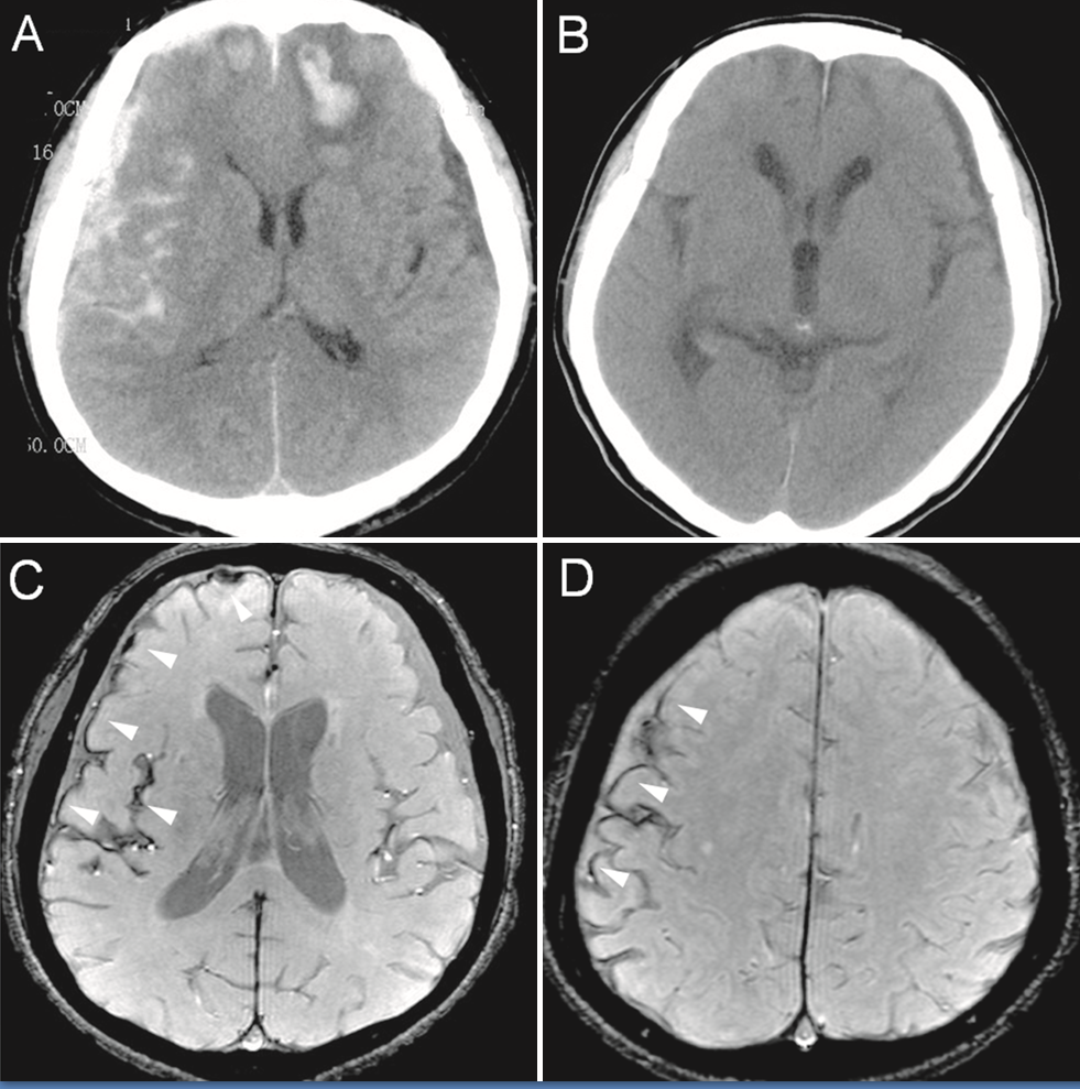 Original description: Figure 2. CT and enhanced gradient echo T2 star-weighted angiography (ESWAN) images of the brain of a 54-year-old man who experienced a traumatic brain injury. An axial head CT image displays right frontotemporal SAH (Fisher grade 4) with bilateral frontal contusions and intracerebral hematoma (A). A follow-up CT image 26 weeks after the brain injury indicates that the hemorrhages were completely resolved and the lateral ventricles were mildly enlarged (B). A follow-up MRI (1.5T) image was obtained 26 weeks following the head injury (C,D). The axial ESWAN image displays a rim of hypointensity (arrowheads), with hemosiderin deposits forming along the cerebral convexity (C, D).