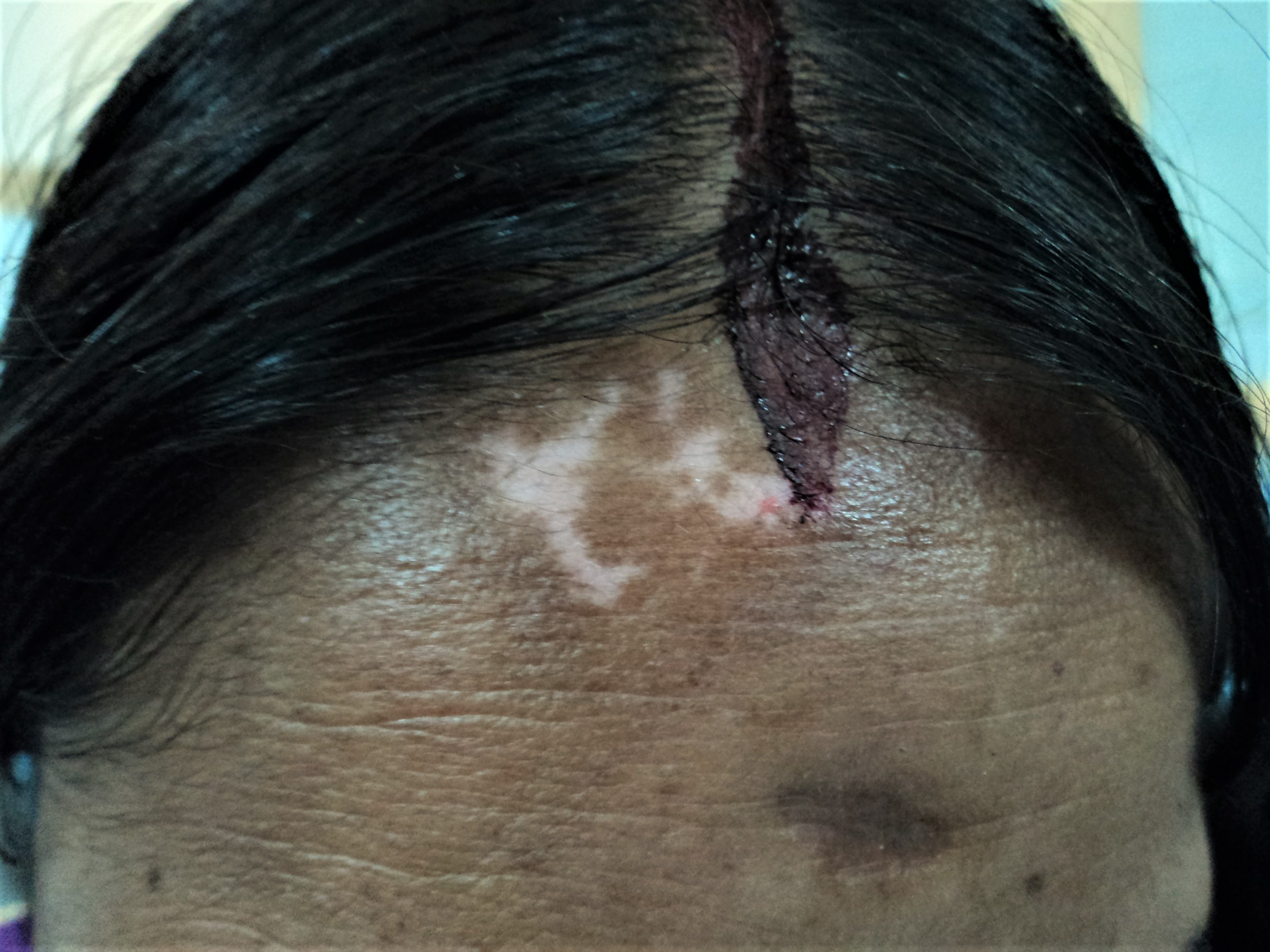 Figure 1. New vitiligo macules over the forehead of a recently married Indian lady, which appeared within 3 weeks of application of vermillion paste (maroon-colored) over the mid portion of the frontal scalp line.