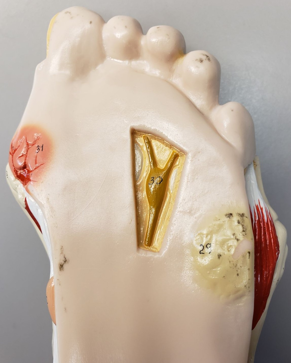Diabetic foot model showing full-thickness ulceration on far left side of picture, and pre-ulcerative lesion on far right.