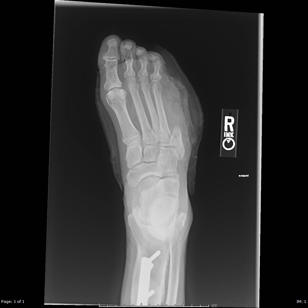 Xray of a patient's right foot after undergoing partial ray resection of the 5th metatarsal for acute osteomyelitis. Patient had history of uncontrolled diabetes, peripheral neuropathy and a long-standing ulceration under the 5th metatarsal head resulting in osteomyelitis of the 5th metatarsal head and shaft. Patient underwent a partial 5th ray resection with long term IV antibiotics for treatment and healed uneventfully.
