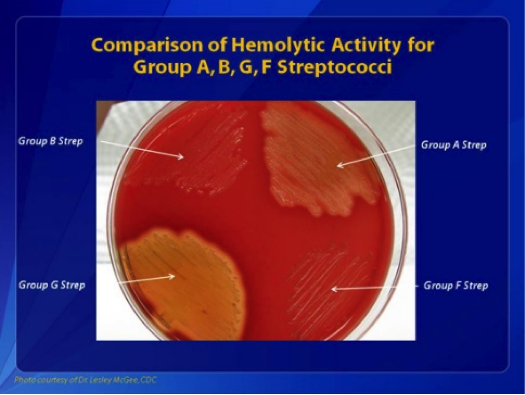 Figure 1: Comparisons of hemolytic activity for groups A, B, G, and F Streptococci. Group B streptococcus appear as small colorless colonies that cause beta-hemolysis.
