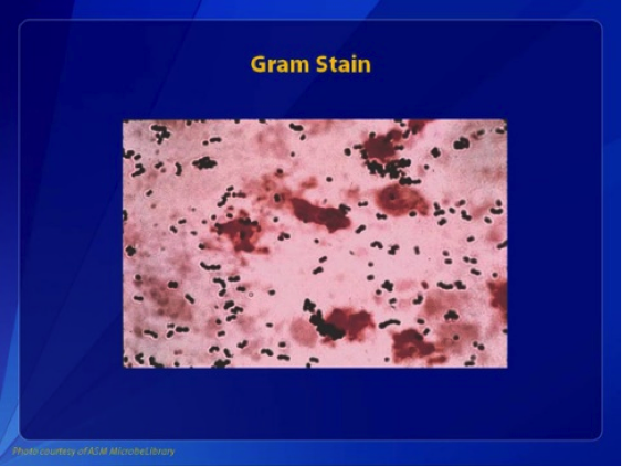 Figure 2: Gram stain of group B streptococcus showing gram-positive cocci in pairs and chains.
