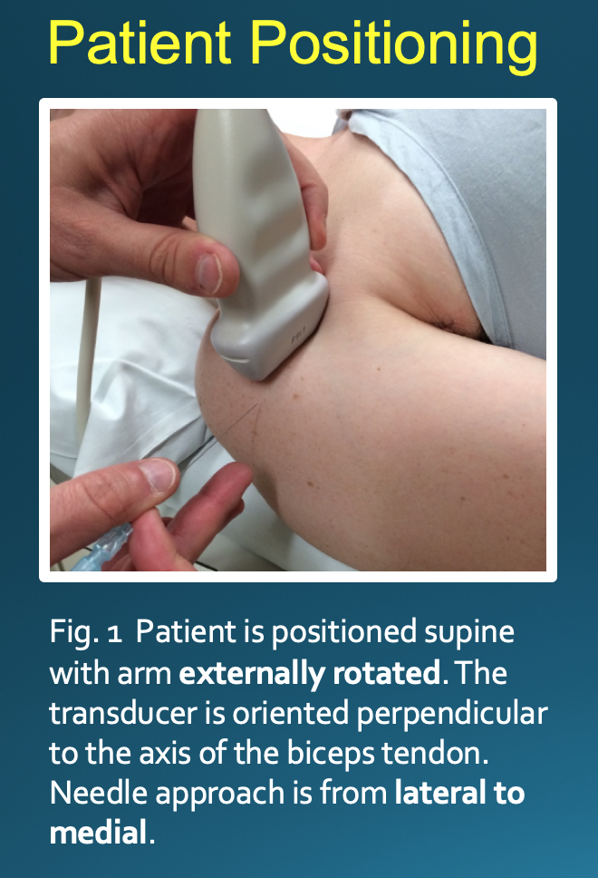 Ideal patient positioning for biceps tendon sheath injection.