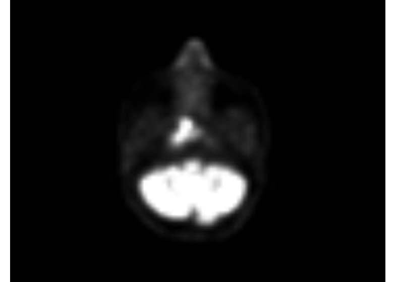 PET- Scan of a patient showing  A hyper-metabolic soft tissue lesion measuring 13 x 10 mm is seen in right nasopharynx