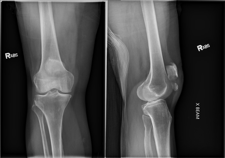 AP and lateral XR of a right knee that shows inferior pole patella fracture with significant gapping.