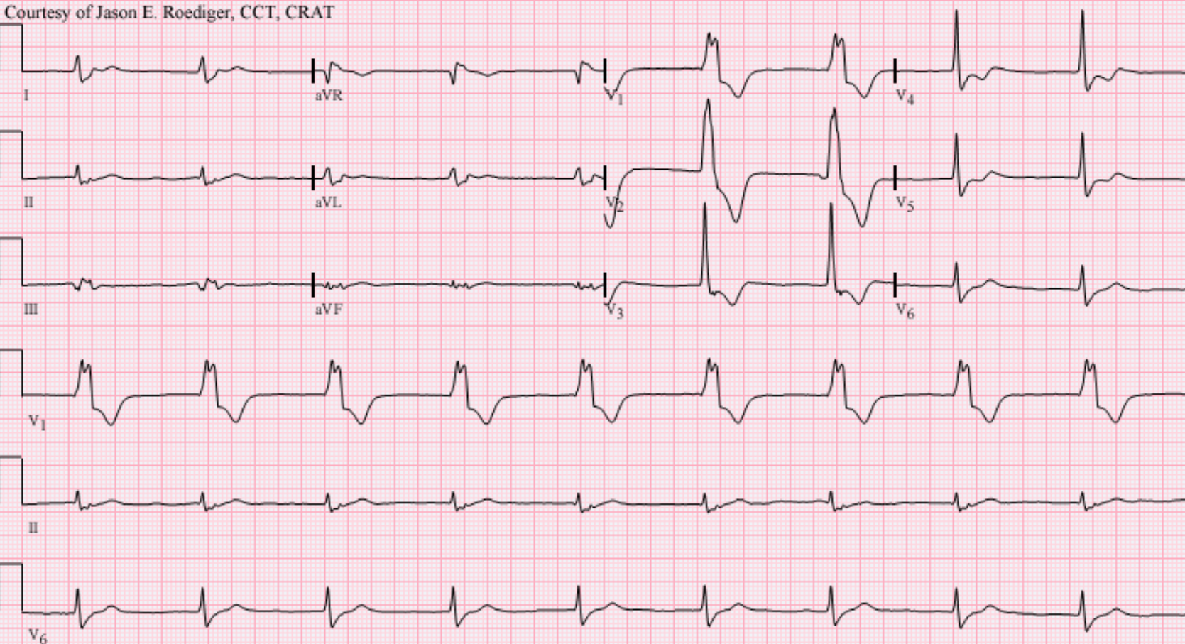 "Accelerated idioventricular rhythm (AIVR) at a rate of 55/min presumably originating from the left ventricle (LV). Note the typical QRS morphology in lead V1 characteristic of ventricular ectopy from the LV. Monophasic R-wave with smooth upstroke and notching on the downstroke (i.e., the so-called taller left peak or ""rabbit-ear"".)"