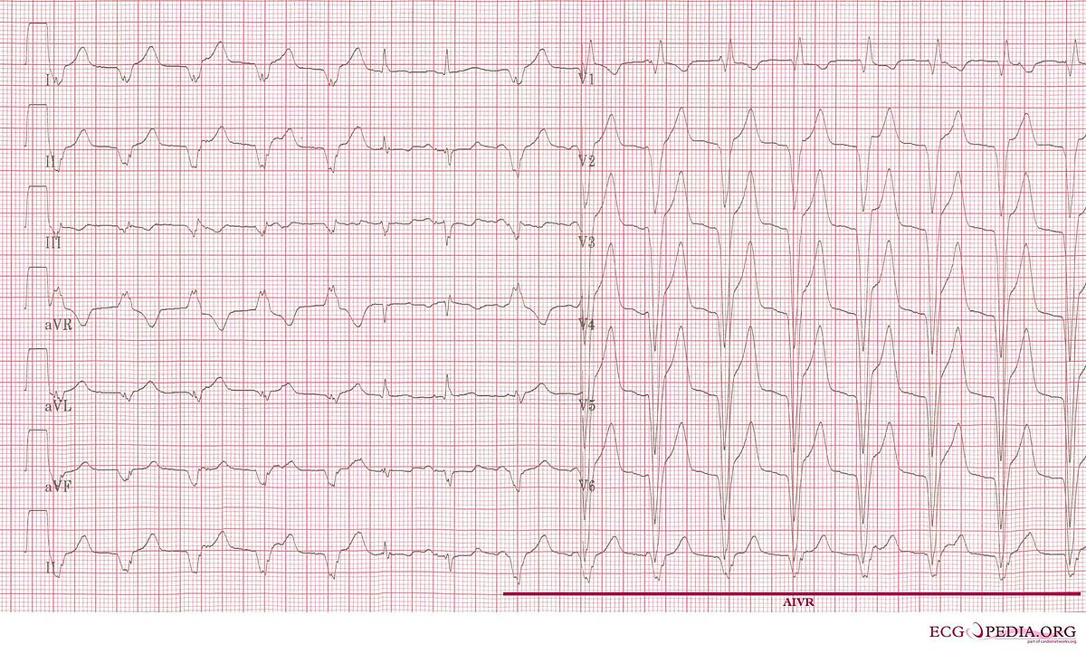 EKG showing accelerated idioventricular rhythm in a patient who was treated with primary PCI.