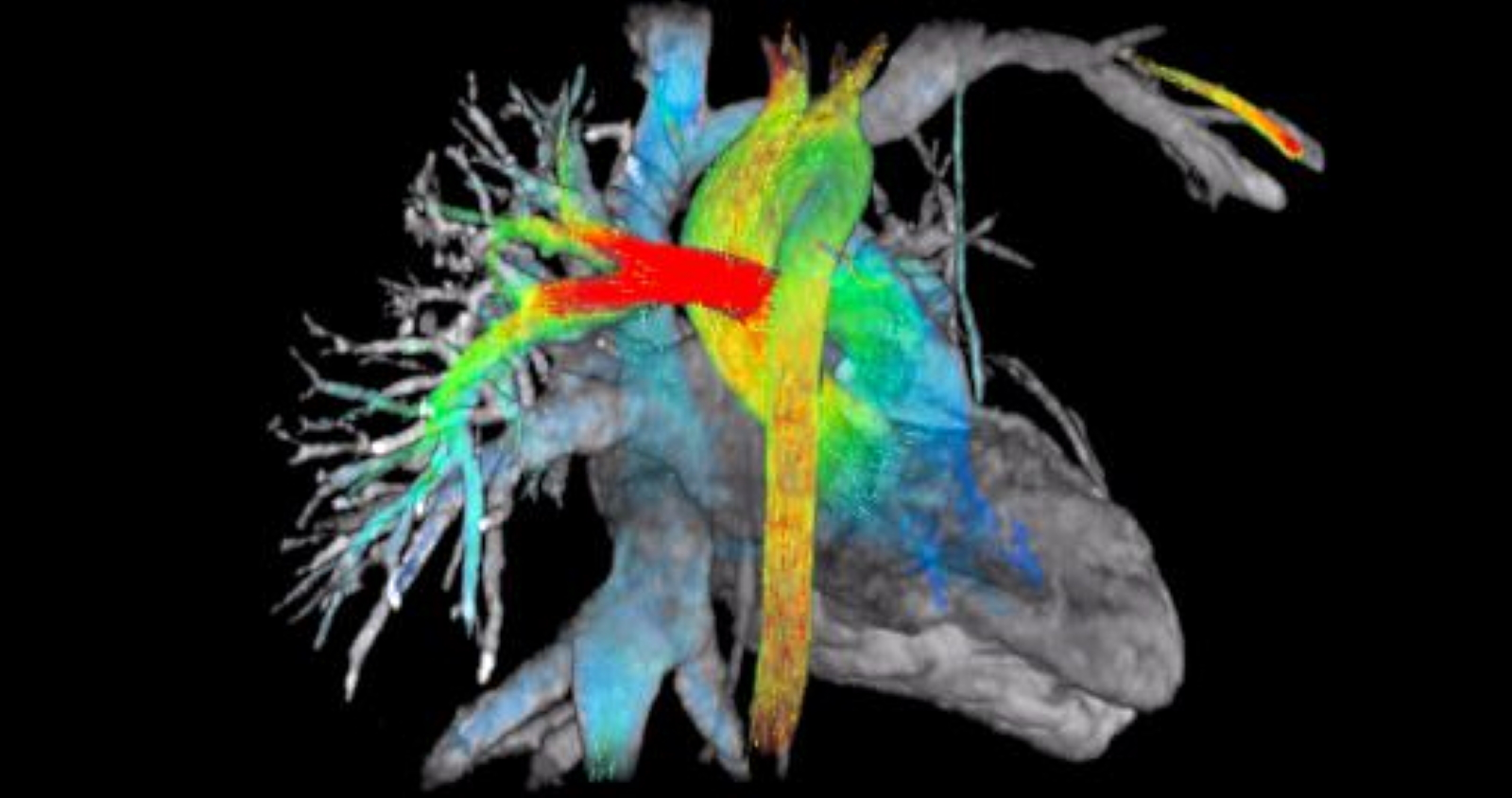 Magnetic resonance imaging can show images of the heart and blood flow.