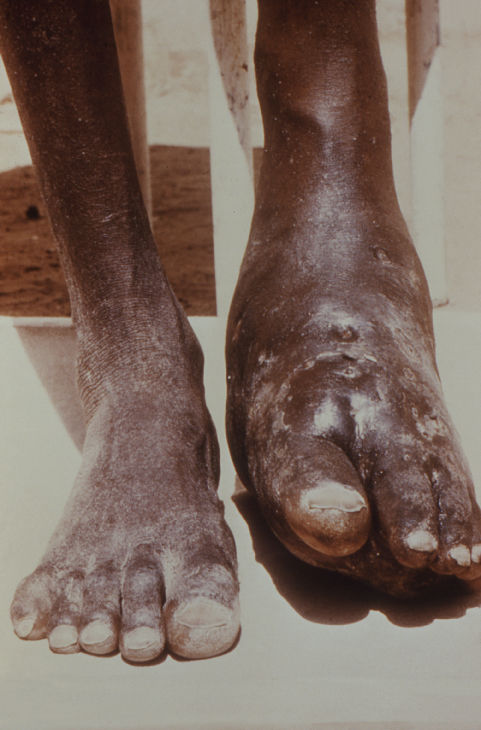 This image depicts the feet, ankles, and lower legs of a patient, who had presented with an infection known as nocardiosis, a form of actinomycosis, due to the bacterium, Nocardia somaliensis, which had affected the left foot and ankle, causing severe swelling and deformation of the normal structural contours.