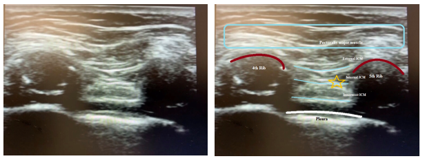 Figure 1.- Sonogram showing the correct place where local anesthetic should be administered (yellow star), between the innermost intercostal muscle and internal intercostal muscle, while performing an intercostal nerve block. It also shows where the parietal pleura is located.