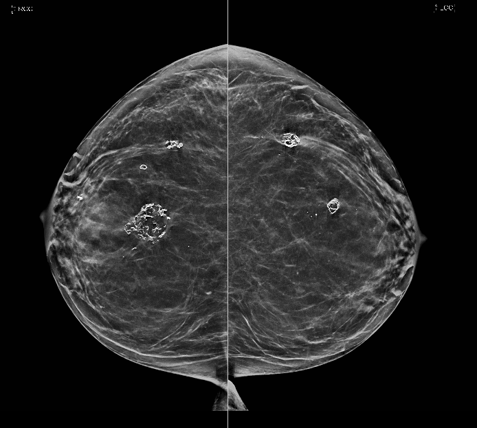 Benign breast calcification: Dystrophic calcifications from fat necrosis are seen within both breasts.