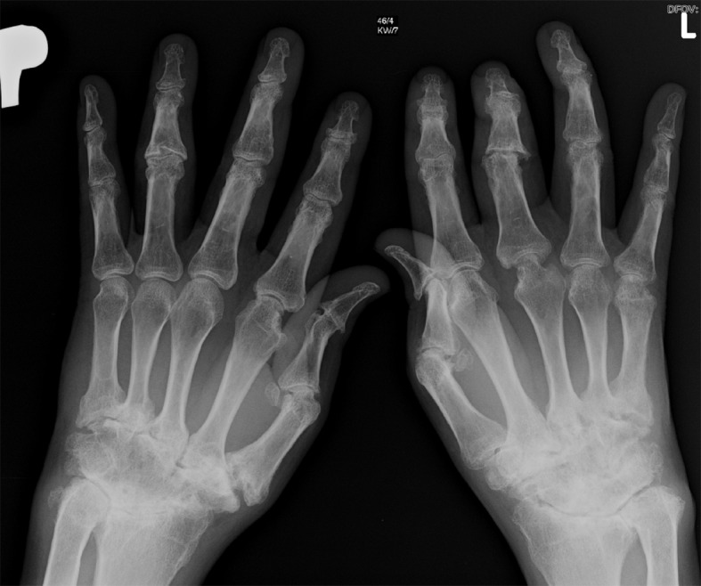 "Psoriatic Arthritis: Arthritis Mutilans in patient with Psoriatic Arthrits, showing destruction of both hand joints. A ""pencil in cup"" change of the metacarpophalangeal joints is charcterisitic."
