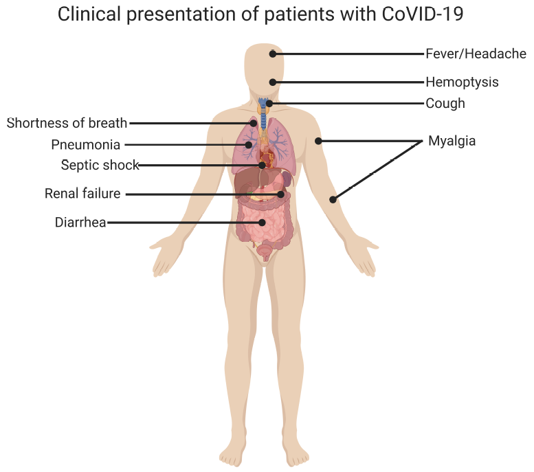 Clinical Presentation of Patients with CoVID-19