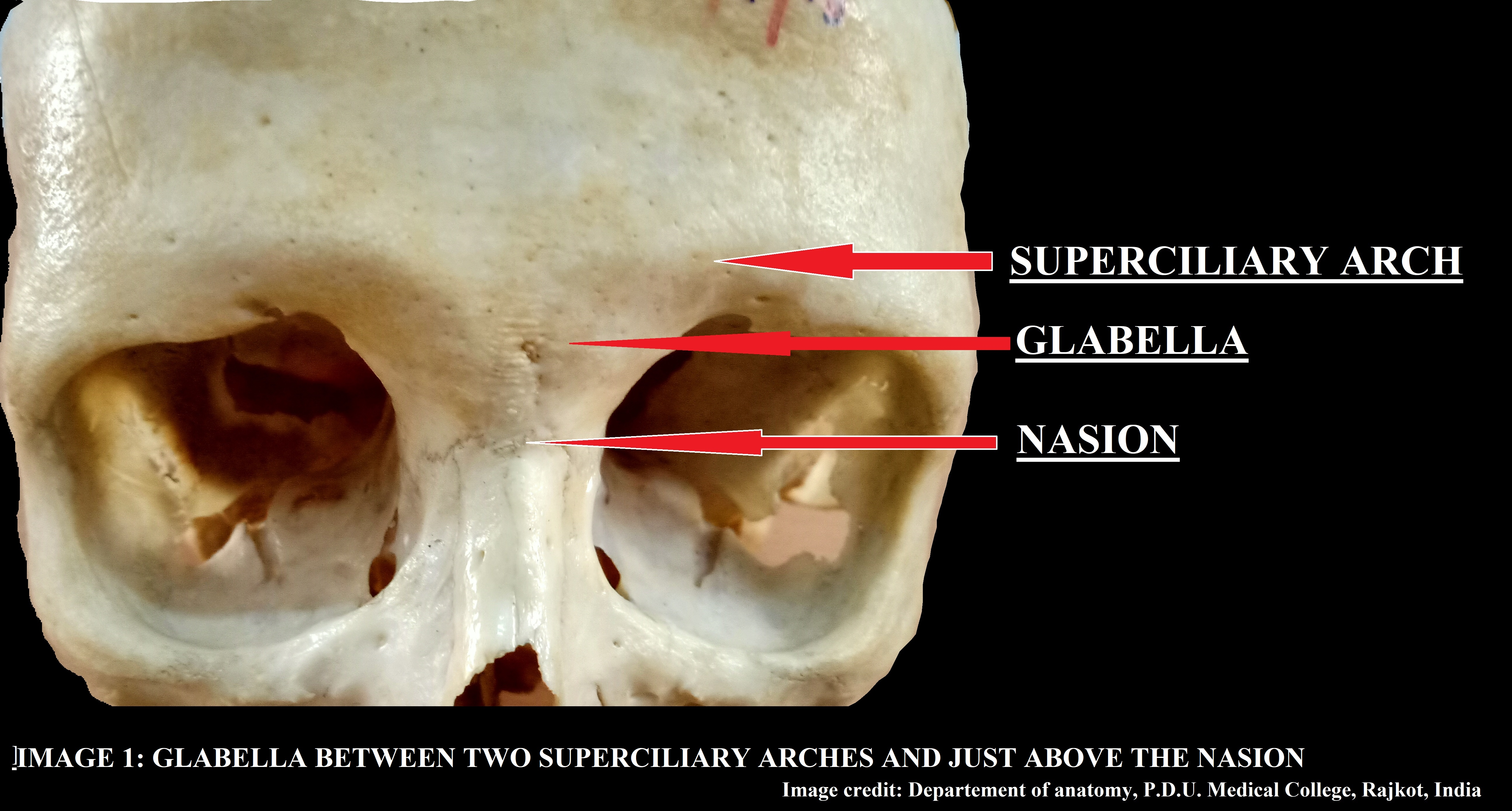 Front of the skull showing Glabella, Superciliary arch and Nasion.