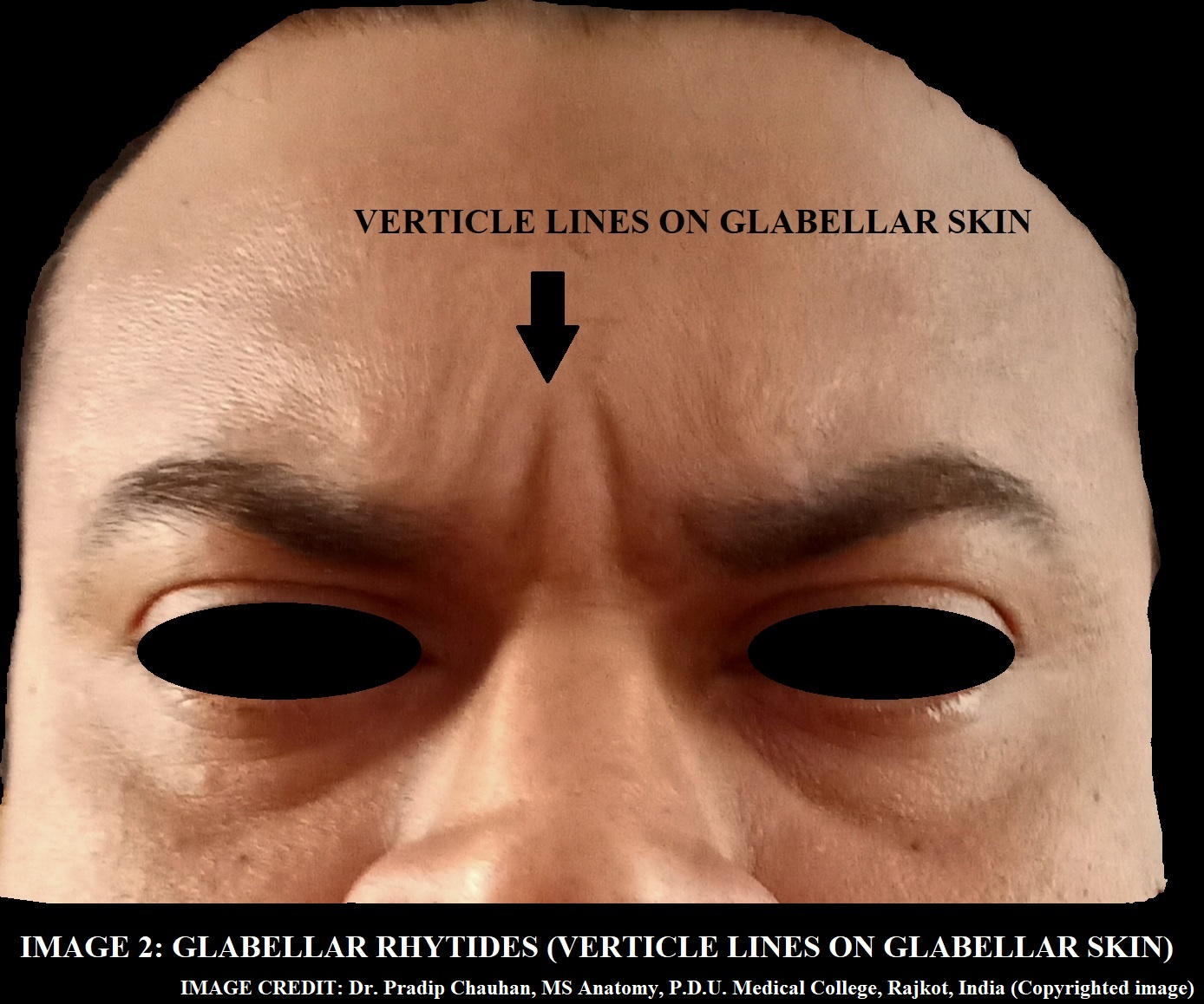 VERTICAL GROOVES ON GLABELLAR SKIN ON MOVEMENT OF EYEBROW.