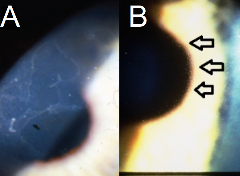 A: Epithelial Basement Membrane Corneal Dystrophy (Map Dot Fingerprint Dystrophy) presents with geographic, map-like erosions on the corneal surface on biomicroscopy. They may present as microcysts or pebble-like. B: Meesmann's Corneal Dystrophy with small, bubble-like inclusions on the corneal surface with biomicroscopy (arrows).