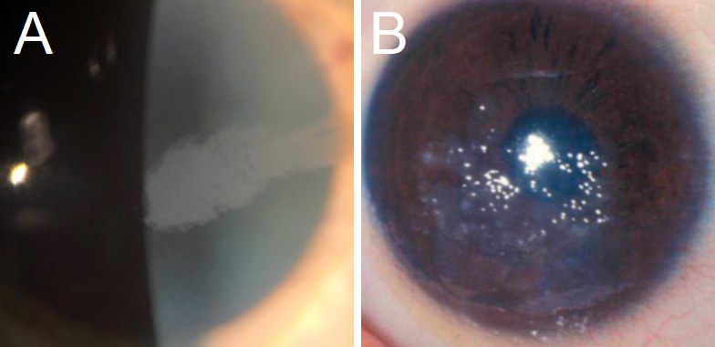 A: A typical presentation of a feather-shaped opacity often found in Lisch Corneal Dystrophy. B: Gelatinous Drop-Like Dystrophy with classic mulberry-like nodules on the corneal surface.