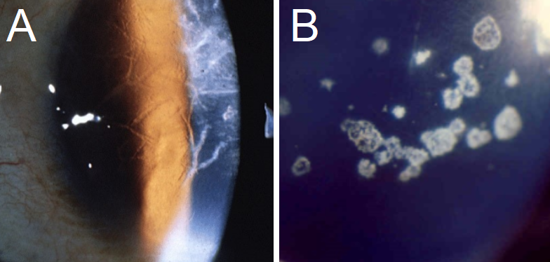 A: Typical branching opacities found in Lattice Corneal Dystrophy. B: A clear presentation of Granular Corneal Dystrophy, with crumb-like opacities separated by clear corneal surface space.
