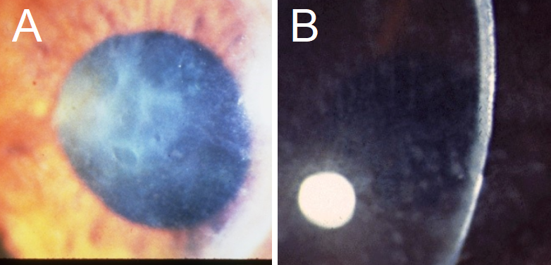A: Reis-Bucklers Corneal Dystrophy presents with erosions and biomicroscopic findings similar to EBMCD, with geographic, map-like erosions on the corneal surface. Note the background corneal haze, which is often not seen in EBMCD. B: Macular Corneal Dystrophy presents with a diffuse ground glass-like opacity, as seen in this cornea from the side.