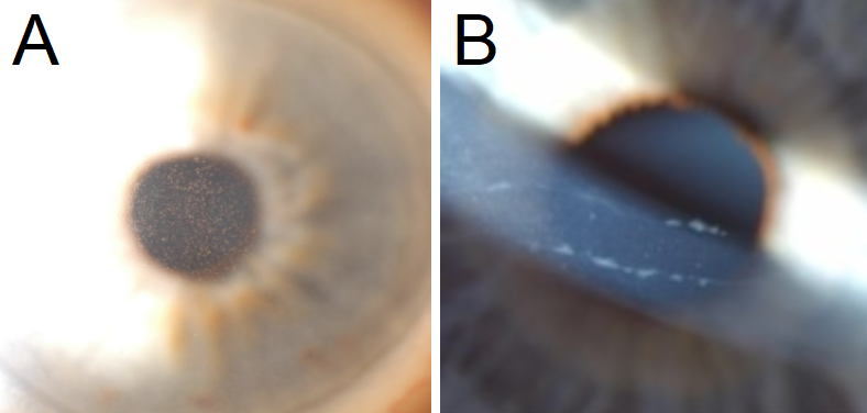 A: Central guttae are noted centrally in this patient with Fuchs Endothelial Corneal Dystrophy. B: Classic band-like structures in the cornea in patients with Posterior Polymorphous Corneal Dystrophy.