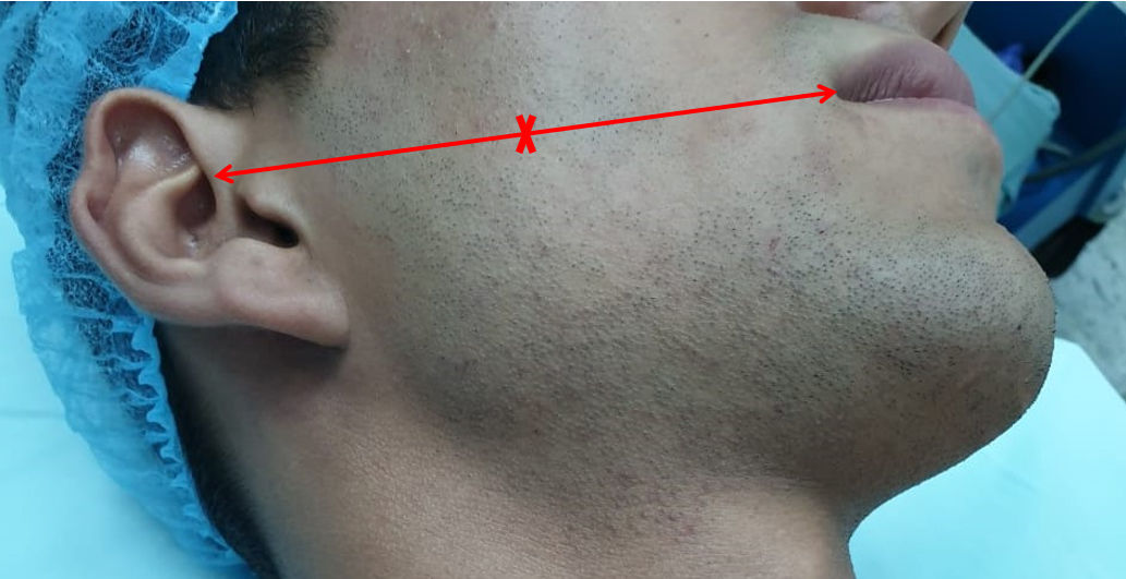 The middle branch of the facial nerve (zygomatic/buccal) can be identified at Zuker's point that lies midway on a line drawn from the root of the helix and the lateral commissure of the mouth with a 6mm accuracy
