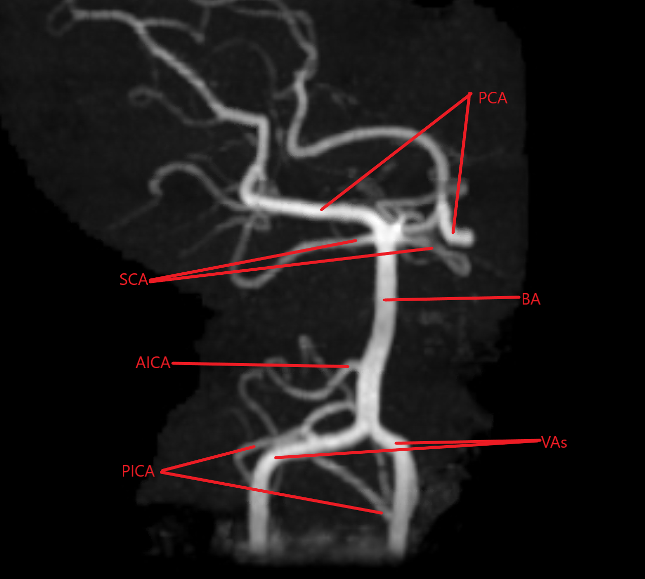 Magnetic Resonance Angiogram of the posterior circulation. PCA (posterior circulation arteries), SCA (superior cerebellar arteries), BA (basilar artery), AICA (right anterior inferior cerebellar artery), VAs (vertebral arteries), PICA (posterior inferior cerebellar arteries