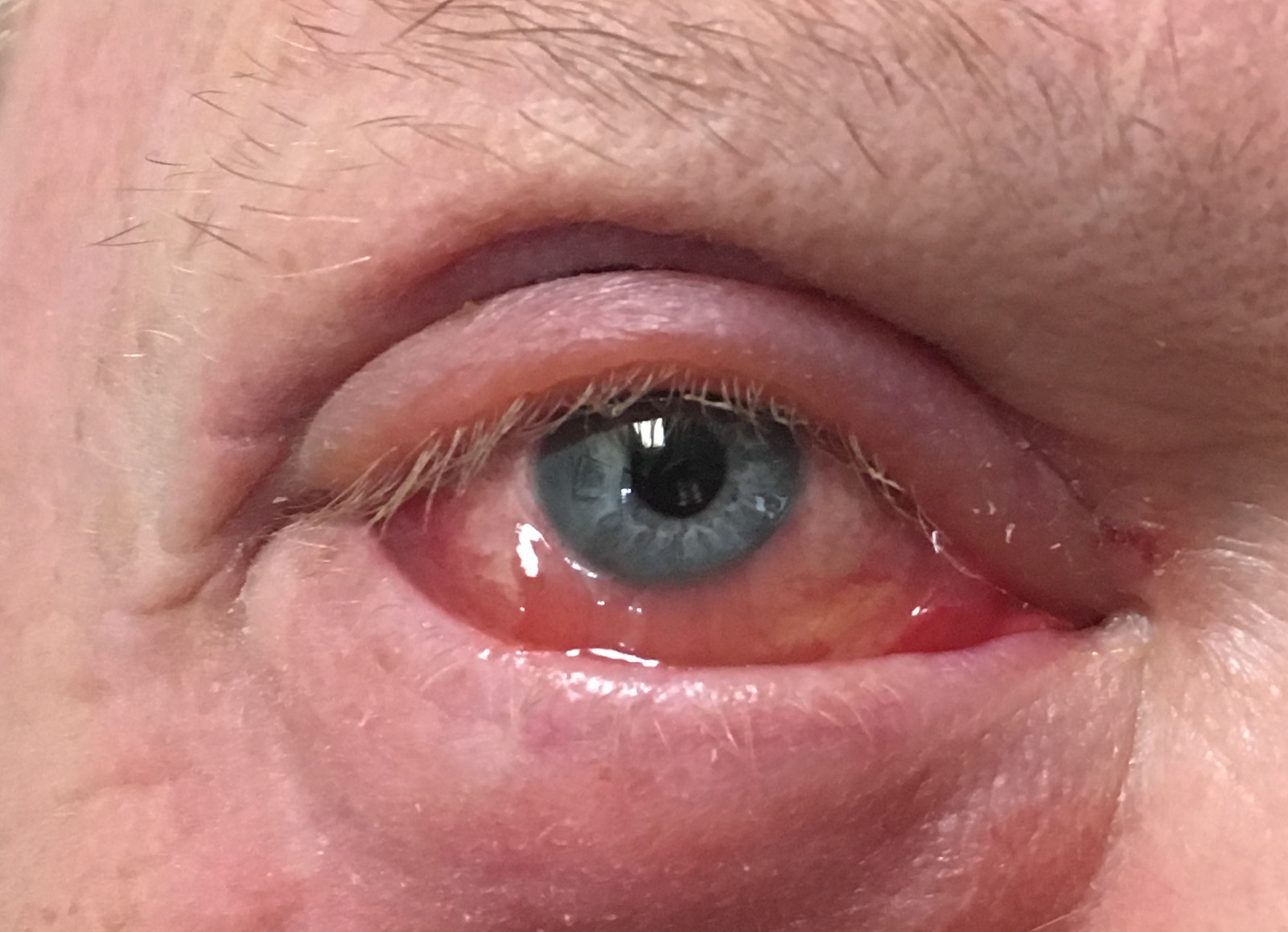 Chemosis: conjunctival edema and inflammation. Can be seen with viral and bacterial infections, after eyelid surgery, trauma, thyroid disease and orbital tumors