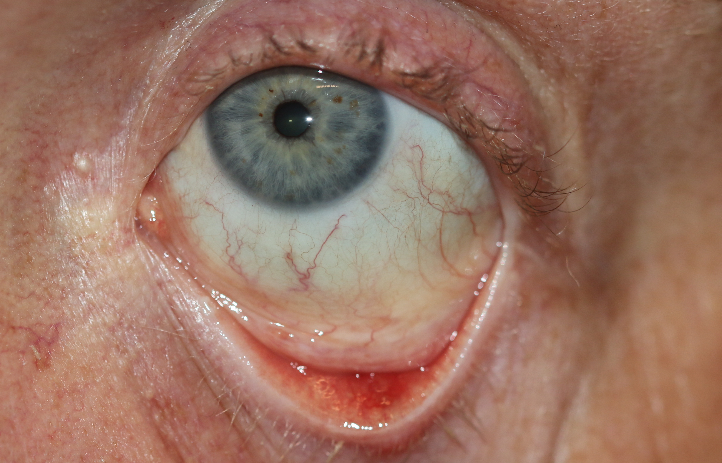 "A 28-year-old male presents with a ""bump"" that has been there for two weeks and one week before presentation, it drained a mucoid material on the inner side of the lid. The bump was painful but is no longer painful and the bump is smaller. This an example of a left lower eyelid chalazion which has spontaneously drained. These will generally get better with no further treatment needed although physicians will often ask the patient to apply erythromycin eye ointment twice a day to the bump and also apply warm soaks to the eyelid twice a day."
