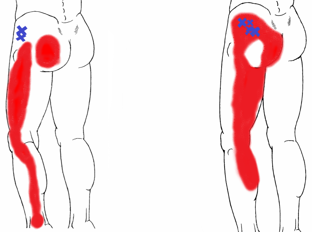 Most common Trigger Points at the Gluteus Minimus muscle.