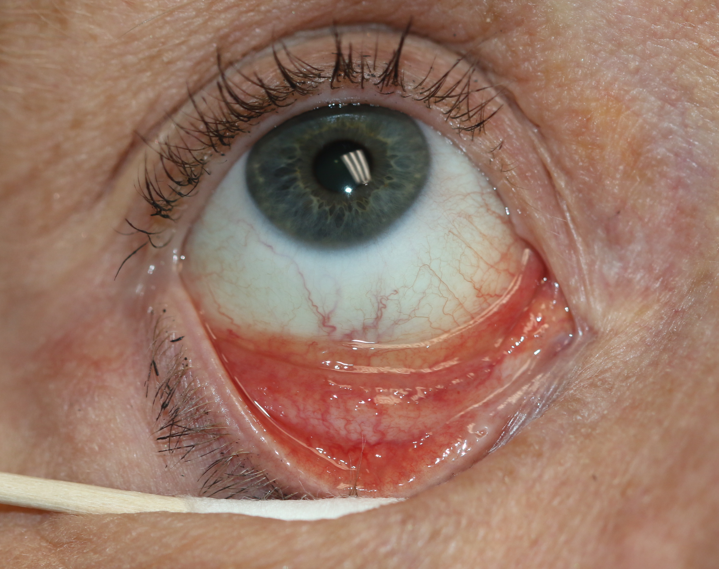 Follicular conjunctivitis may be seen with viral infections like herpes zoster, Epstein-Barr virus infection, infectious mononucleosis), chlamydial infections, and in reaction of topical medications and molluscum contagiosum. Follicular conjunctivitis has been described in patients with the COVID-19 infection (coronavirus infection). The inferior and superior tarsal conjunctiva and the fornices show gray-white elevated swellings which are about 0.5 - 1 mm in diameter and have a velvety appearance